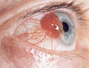 Cara pengobatan alami Kanker mata primer
