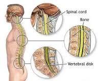Obat alami kanker sumsum tulang belakang