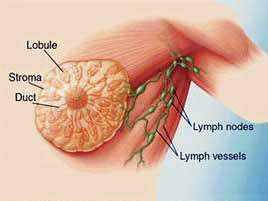 waspadai terajdinya gejala kanker payudara