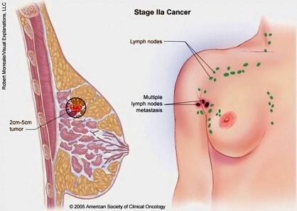 obat alami penyakit kanker payudara