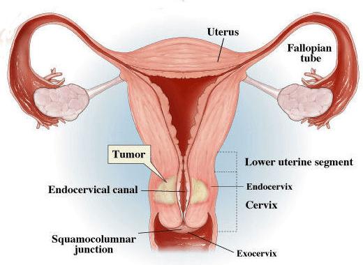 Kenali gejala kanker mulut rahim