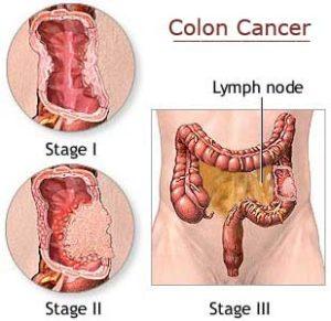 cara penyembuhan penyakit kanker kolon