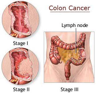 obat kanker kolon