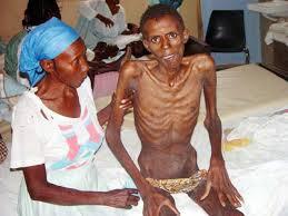Penderita penyakit HIV - AIDS