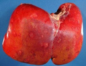 obat alami penyakit kanker hepatitis