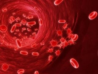 penyakit kanker darah /leukimia
