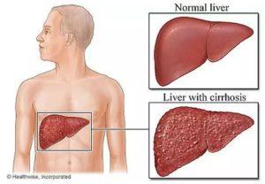 Cara alami pengobatan penyakit sirosis hati