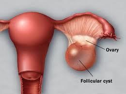 penyakit kista ovarium