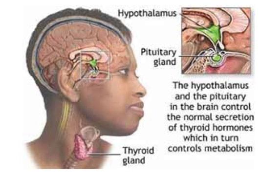 Kelenjar Tiroid berpotensi terserang kanker