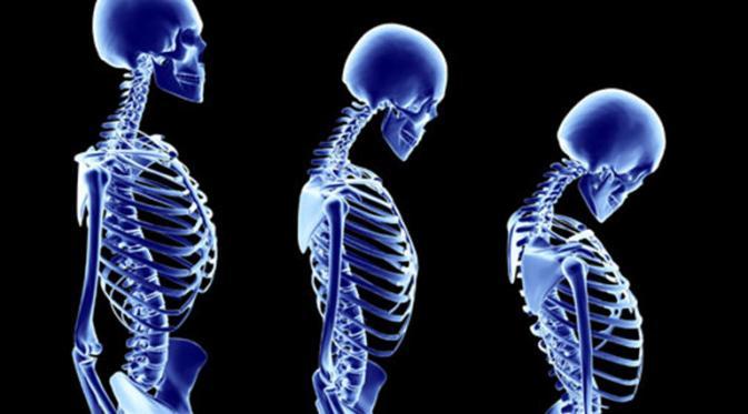 Obat alami sakit tulang punggung